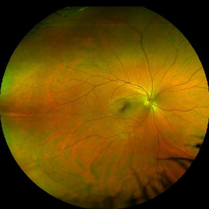 Eye Doctor Tecumseh